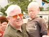 Geneticists believe that albinism may have its roots in sub-Saharian Africa, which may explain why the prevalence of the genetic condition is much higher there. To date, 1 in 2,000 people have albinism in this part of the world, whereas in North America, 1 in every 20,000 have the condition.